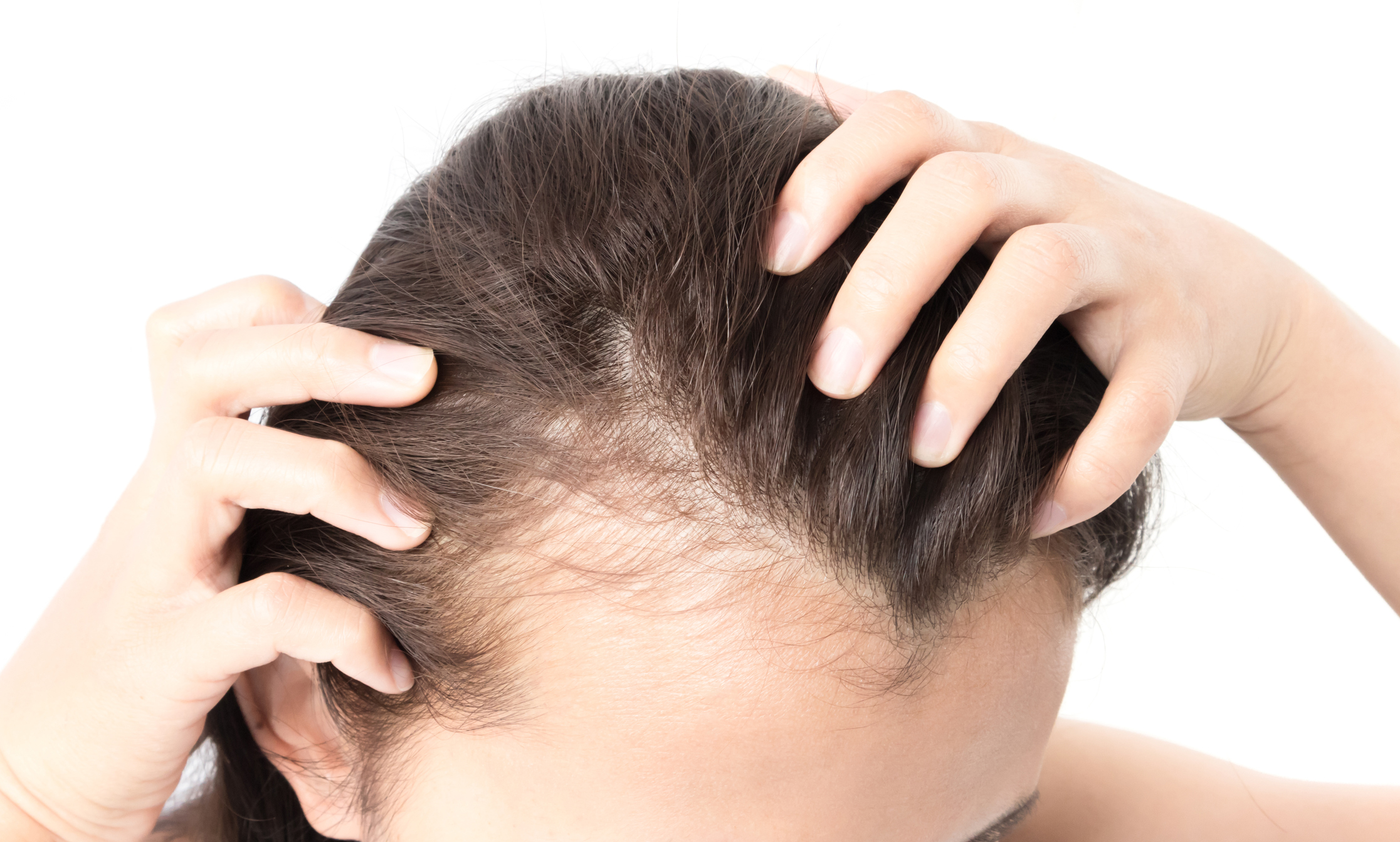 naturopathy treatment for hair loss@natural-cure.org